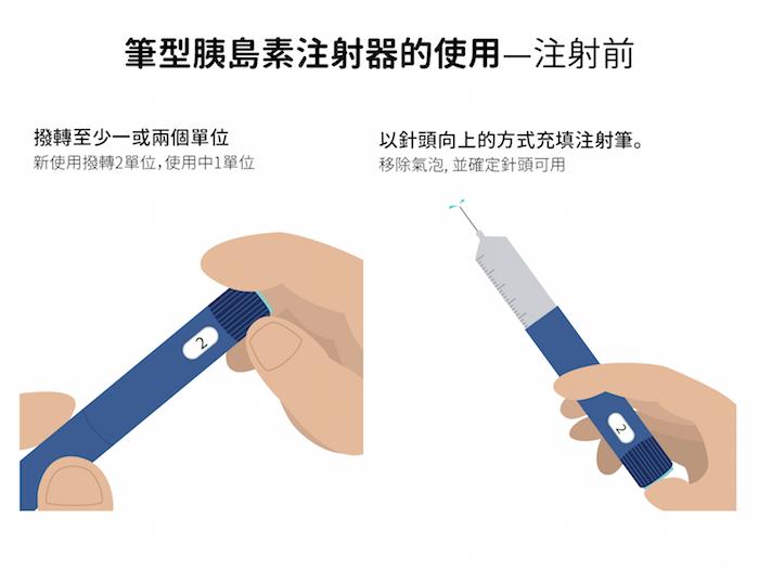 筆形胰島素注射的使用技巧,若是混合型胰島素,在使用前應先上下擺動。撥轉注射器上單位,以針頭向上的方式填充注射筆,並移除氣泡。