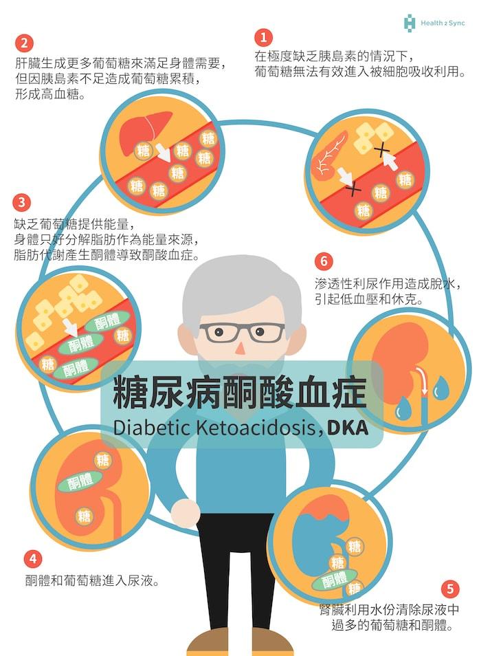 糖尿病酮酸血症的發病原因,主要來自於體內極度缺乏胰島素,導致血液中的高血糖與高酮體,產生利尿作用,身體就容易脫水,引起低血壓與休克的症狀。