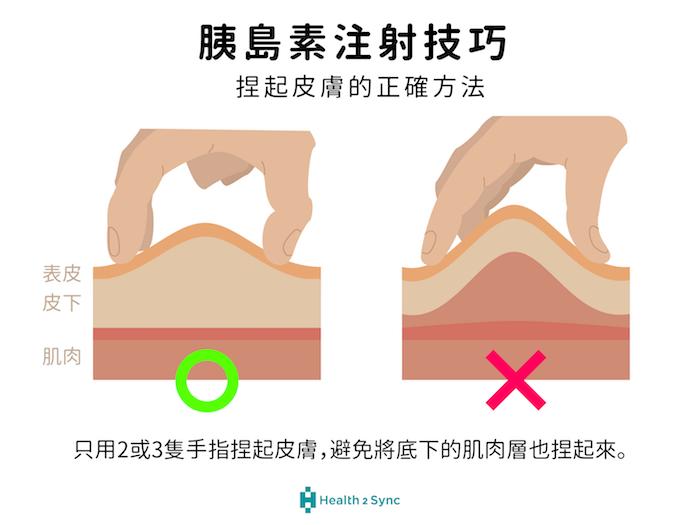 注射胰島素時可將皮膚捏起,確保胰島素有施打進皮下脂肪層。捏起皮膚注射時,以大拇指與食指輕輕將皮膚捏起即可,不用捏得太大力、或用整隻手捏,避免將肌肉層也捏起。