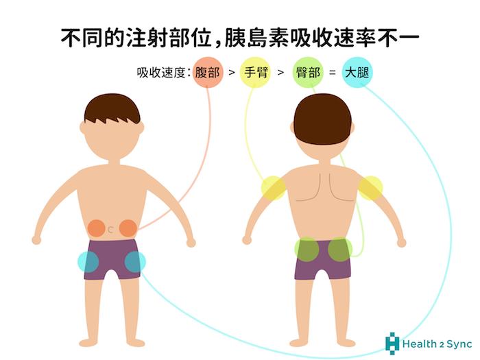胰島素施打的部位包括手臂、腹部、臀部、大腿,當注射部位不一樣時,吸收速度也會有所不同,其中以施打在腹部的皮下脂肪層吸收速度最快。