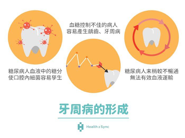 糖尿病牙周病的形成,糖尿病的高血糖使得口腔內的細菌容易滋生,導致產生蛀牙、牙周病,再加上糖尿病的末梢微血管不暢通,無法有效血液運輸,降低了口腔組織與牙周組織的復原能力。