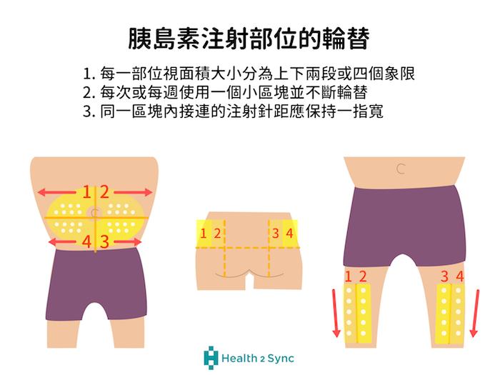 胰島素施打的部位包括手臂、腹部、臀部、大腿,注射部位的輪替不僅可以避免脂肪增生,更可以確保胰島素的吸收與作用。